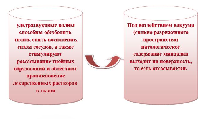 Принцип работы «Тонзиллора» подробно